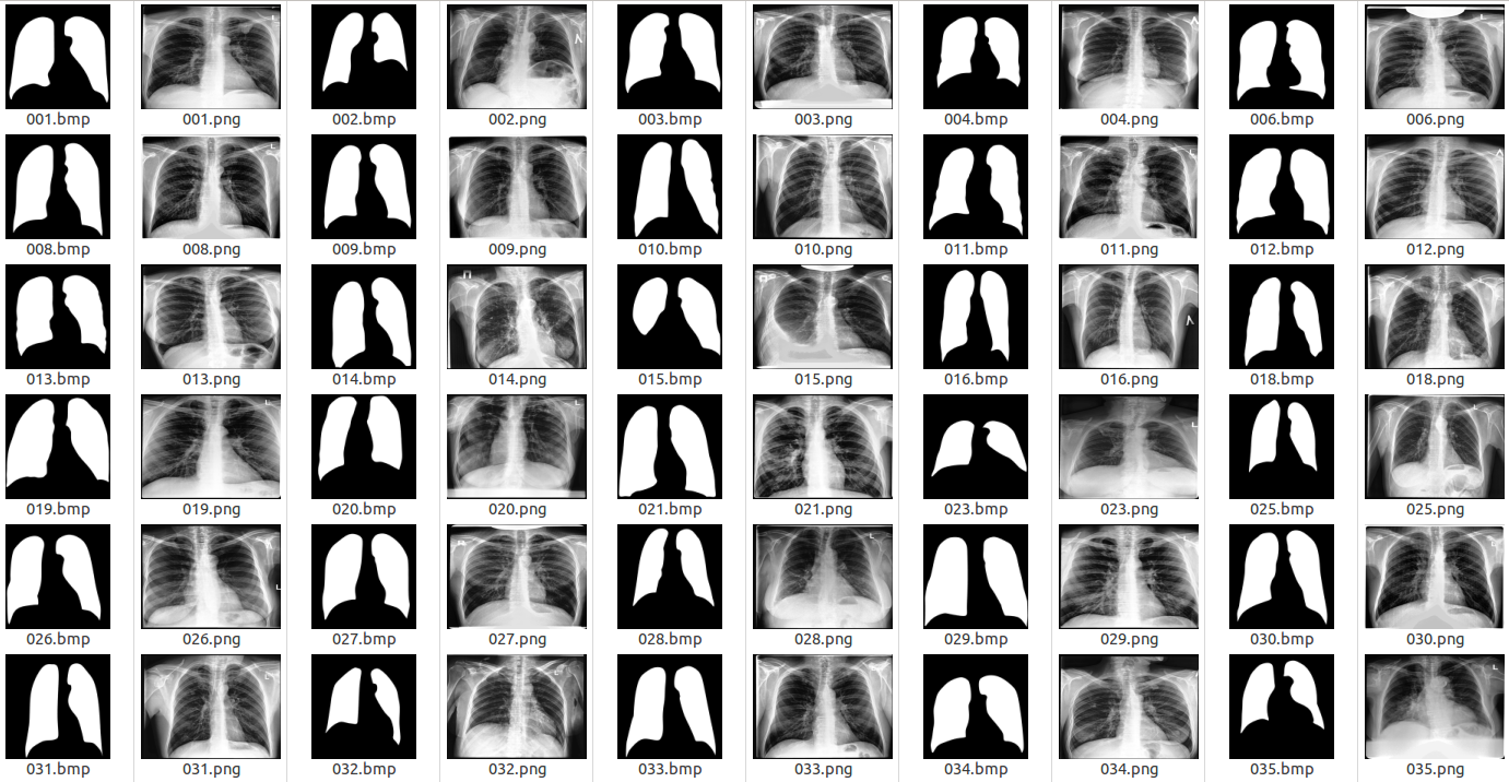 Experimenting with Deep Neural Networks for X-Ray Image Segmentation